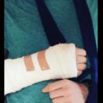 エド・シーラン 事故(画像)。来日公演に影響は?(中止・延期・払い戻しの可能性)。自電車の怪我の容態と全治。